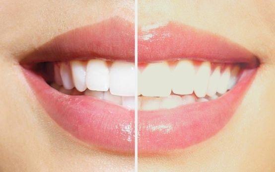 blanqueamiento dental elche